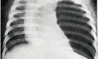 Емфізема та переповнення легкого повітрям - захворювання органів дихання у дітей