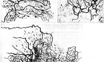 Епікардіальние, міокардіальні, ендокардіальні сплетення - клінічна анатомія серця