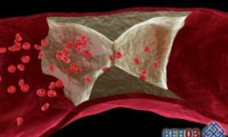 Як лікувати тромбоз вен нижніх кінцівок