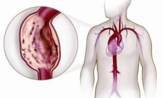 Як лікується аневризма грудного відділу аорти