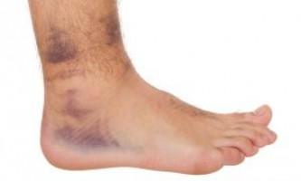 Як треба лікувати вивих голеностопа, як вправити суглоб