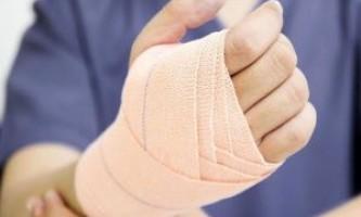 Як правильно зафіксувати і лікувати вивих кисті руки