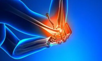 Як слід лікувати вивих ліктьового суглоба, рекомендації фахівця