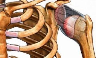 Як вправити і лікувати вивих плечового суглоба