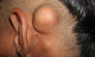 Як виглядає пухлина черепа?