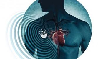 Кардіостимулятор може вберегти від інсульту