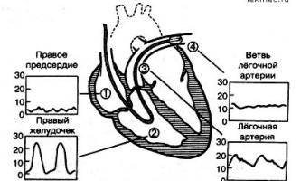 Катетеризація легеневої артерії - інтенсивна терапія