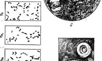 Кишкова паличка - мікробіологія з технікою мікробіологічних досліджень