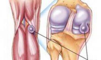 Кіста бейкера колінного суглоба народне лікування.