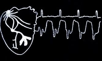 Клінічна анатомія серця