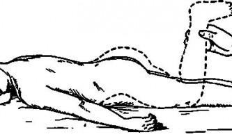 Коксит - хірургія дитячого віку