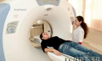 Комп`ютерна томографія (кт) головного мозку