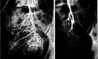 Кровотеча з прямої кишки внаслідок звільнення від фекальних мас - діагностична радіологія 1979