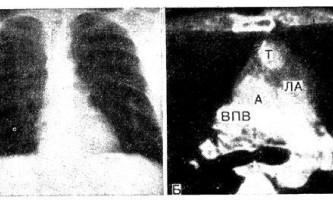 Кт переднього середостіння у хворих на тяжку міастенію - діагностична радіологія тисячі дев`ятсот сімдесят дев`ять ч.2