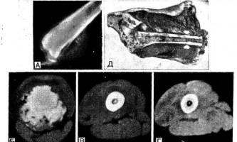 Кт при пухлинах опорно-рухового системи у дітей - діагностична радіологія 1979 ч.2