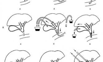 Лапароскопічне дренування жовчного міхура і жовчних проток - посібник з клінічної ендоскопії
