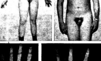 Лікування хворого з затримкою статевого дозрівання - уповільнене статеве дозрівання