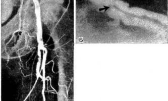 Лікування ерготизм нитропруссидом натрію і епідуральної блокадою - діагностична радіологія 1979