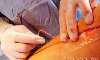Лікування тромбофлебіту глибоких вен нижніх кінцівок