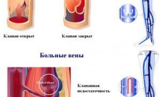 Лікування варикозної хвороби нижніх кінцівок