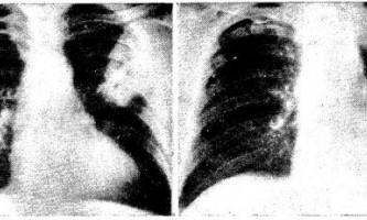 Легеневі ускладнення після трансплантації нирок - діагностична радіологія одна тисяча дев`ятсот сімдесят дев`ять ч.2