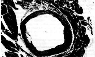 Права та ліва вінцева артерія - клінічна анатомія серця