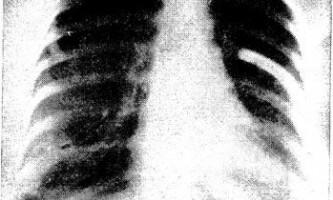 Лімфангіолейоміоматоз - зіставлення - діагностична радіологія 1 979 ч.2
