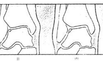 Малопомітні трансхондральние переломи блокутаранною кістки - діагностична радіологія 1979 ч.2