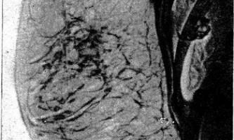 Метастатичні ураження молочної залози - діагностична радіологія 1979 ч.2