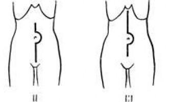 Методика оперативних втручань - гострі порушення мезентериального кровообігу