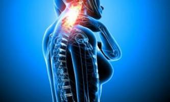 Міжхребцева грижа хребта шийного відділу