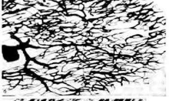 Микроциркуляторное русло серця - клінічна анатомія серця