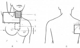 Молочна залоза - гамма-терапія злоякісних пухлин