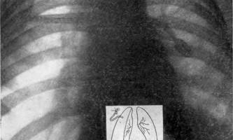 Невідкладна пульмонологія дитячого віку - помилки третьої ланки - помилки і небезпеки в хірургії дитячого віку