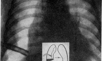 Невідкладна пульмонологія дитячого віку - помилки другої ланки - помилки і небезпеки в хірургії дитячого віку
