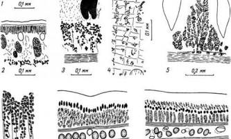 Нервова система - діфіллоботрііди