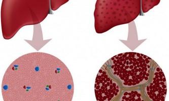 Низький гемоглобін при цирозі печінки: причини, лікування