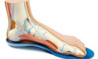 Взуття та ортопедичні устілки при артрозі колінного суглоба