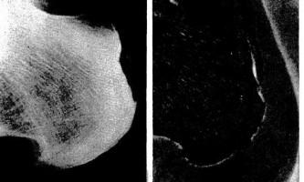 Звапніння сухожилля при хондрокальциноз - діагностична радіологія 1 979 ч.2