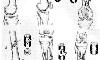 Вогнепальні поранення кісток кінцівок - невідкладна рентгенодіагностика