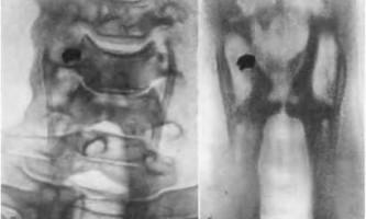 Вогнепальні поранення шиї - невідкладна рентгенодіагностика
