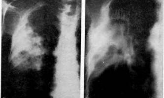 Обмежене затемнення - програма для вивчення рентгенограм, відповіді - рентгенологічні синдроми та діагностика хвороб легенів