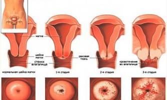 Основні стадії раку шийки матки