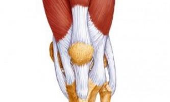 Основні захворювання сухожиль колінного суглоба, як їх лікують