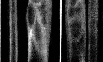 Міофасцити фіброми довгих трубчастих кісток - діагностична радіологія тисячі дев`ятсот сімдесят дев`ять ч.2