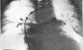 Гостра дихальна недостатність при інфаркті легкого - невідкладна рентгенодіагностика