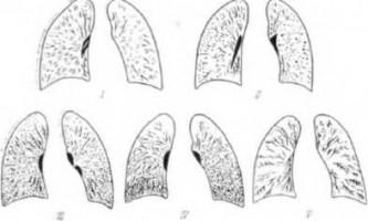 Гостра дихальна недостатність при шоковому легкому - невідкладна рентгенодіагностика
