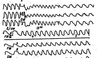 Відображення на рег оперативного відновлення кровотоку в сонних і хребетних артеріях при їх оклюзії - клінічна реоенцефалографія