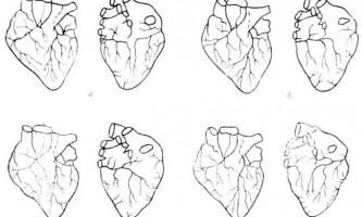 Відводять лімфатичні судини - клінічна анатомія серця