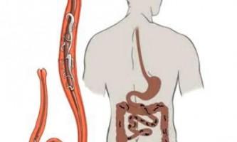 Паразитарне зараження печінки: прояви, лікування та профілактика